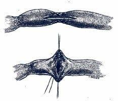 Stricturoplasty
