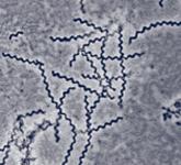 Treponema Pallidum. An Oninous Spirochete.